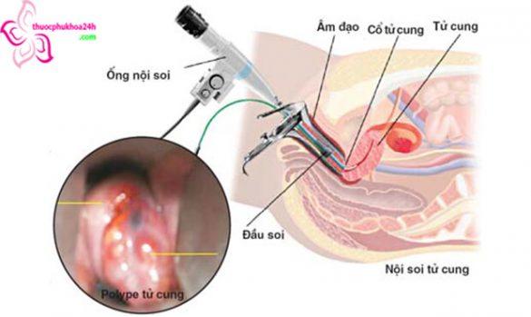 áp lạnh cổ tử cung có gây vô sinh không